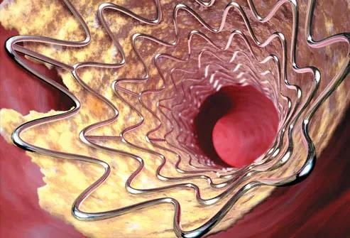 Angioplasty For Stroke Prevention