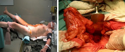 procidencia_aguda_rectal/cirugia_abierta_laparotomia