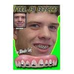 INSTANT SMILE BILLY BOB BRACES NERD FAKE TEETH NOVELTY COSMETIC TOP VENEER by fearless apparel