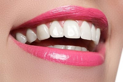 6 Most Common Cosmetic Dentistry FAQs