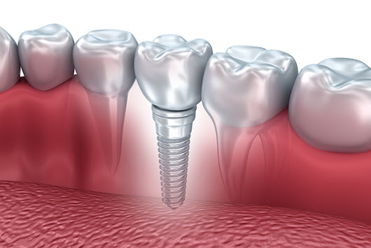 5 Questions to Ask About Dental Implants