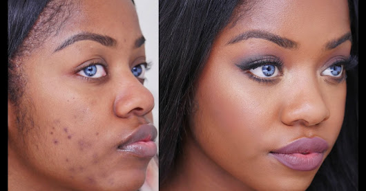 The Truth About Blemishes and Some Tips