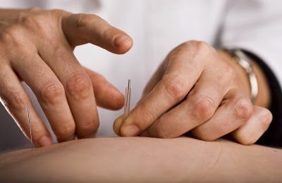 Acupuncture Helps Pediatric Patients Manage Pain and Nausea |