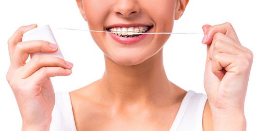 Ten Tips for Keeping Your Braces Clean | Bayside Dental & Orthodontics