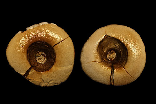 Bitumen Fillings Discovered in Two Stone Age Teeth  - Archaeology Magazine