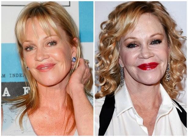 A atriz Melanie Griffith em junho de 2008 (à esq.) e em fevereiro de 2015. (Foto: Getty Images)