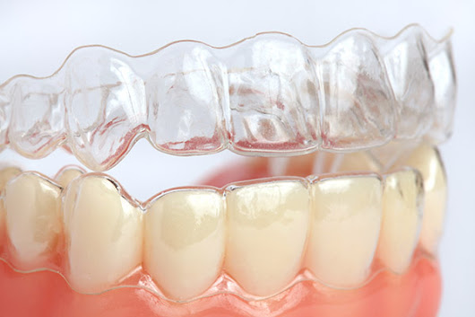Learn the Truth About Clear Braces