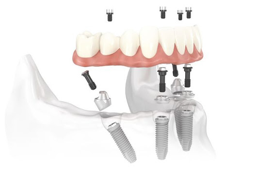 Implant-supported Dentures - Woodbury, MN - St. Paul, MN - Maplewood, MN