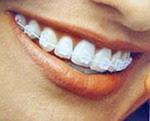 Aparelho dentário estético (brackets e fio transparentes)