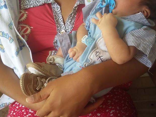 Bebê com microcefalia é atendido no Hospital Universitário Oswaldo Cruz, no Recife (Foto: Katherine Coutinho/G1)