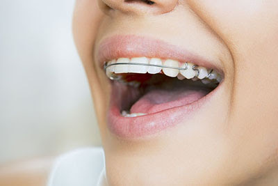 Learn How to Care For Your Teeth From Orthodontics Specialists