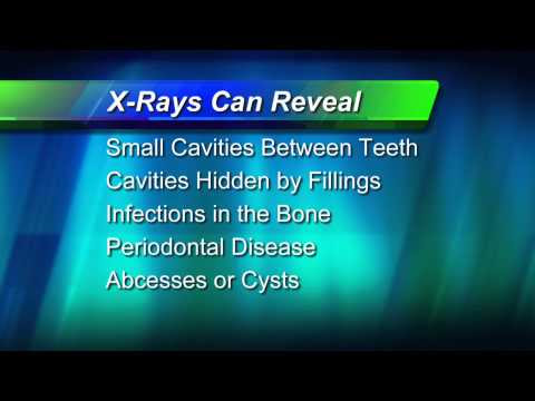 Why X-Rays?