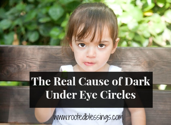 The Cause of Dark Under Eye Circles - Rooted Blessings