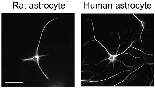 Researchers purify and grow human astrocytes-in-a-dish for the first time ever.