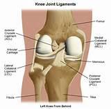 Images of Injury Knee