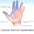 Chiropractor Chandler AZ - Carpal Tunnel Syndrome