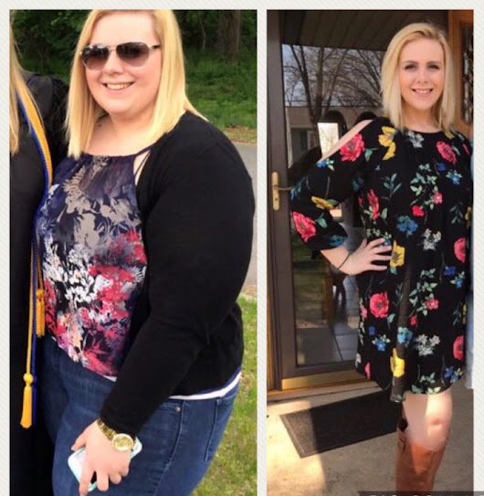Kaylee loses 120 pounds after bariatric surgery performed by Dr. Adeyeri in Old Bridge.