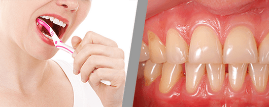 Dental Checkups and Gum Health | Asleep For Dentistry