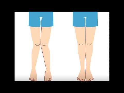 How surgeons perform distal femoral osteotomy to correct knock-knee deformity.