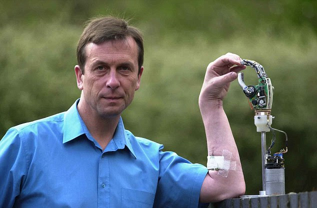 Professor Kevin Warwick pictured with his cybernetic arm at Reading University
