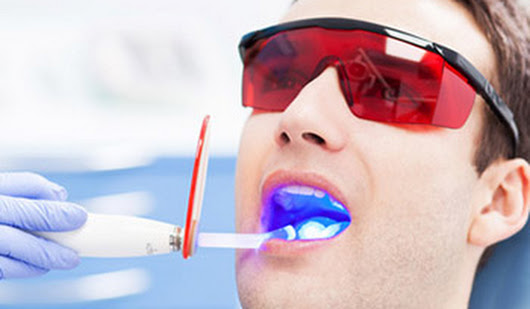 Laser root canal therapy