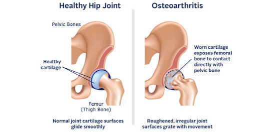 What You Need to About Osteoarthritis of the Hip