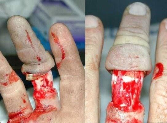 8 BECKERS BITZ Wedding ring accident