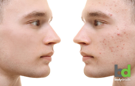 Acne Scar Removal Technology Has Come a Long Way | Body Details Blog