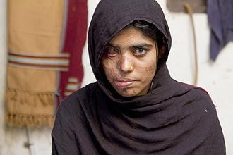 """Cena de """"Salvando a Face"""", que apresenta tragédias com mulheres paquistanesas que tiveram os rostos desfigurados por ácido"""