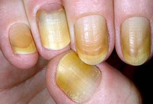 ongles de terry