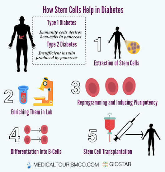 Stem Cell Diabetes Treatment in Mexico | Type 1 Diabetes | Type 2 Diabetes | GIOSTAR | Med Tourism Co, LLC