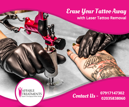Erase Your Tattoo Away with Laser Tattoo Removal