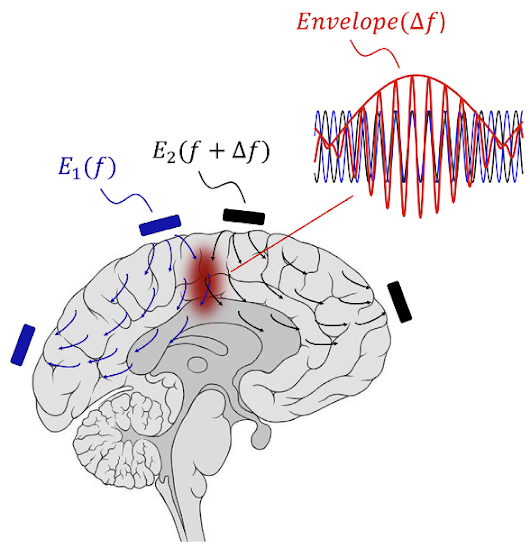 A noninvasive method for deep-brain stimulation for brain disorders | KurzweilAI