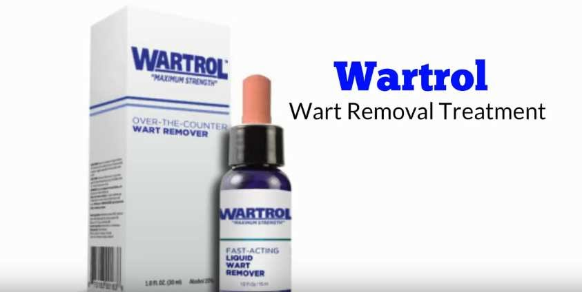 The Best Wart Remover On The Market Leaves No Scars Uzines