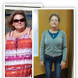Before After Weight Loss Surgery Mexico | Mexico Bariatric Services