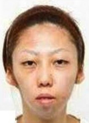 Jian Feng's wife after the surgery