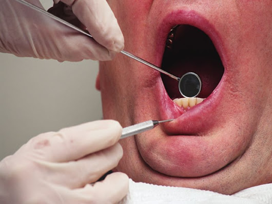 Many Americans skip the dentist due to cost