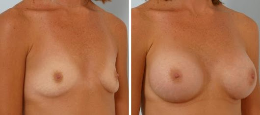 How Safe Are Breast Implants Really? - Blog