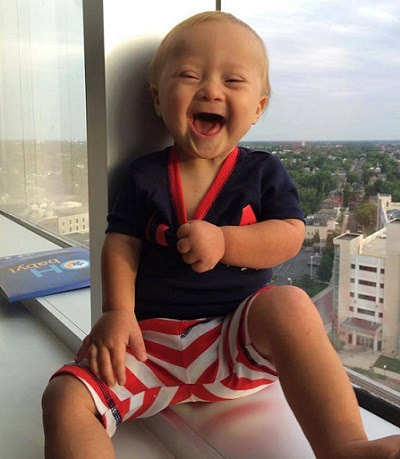 garotinho com síndrome de down