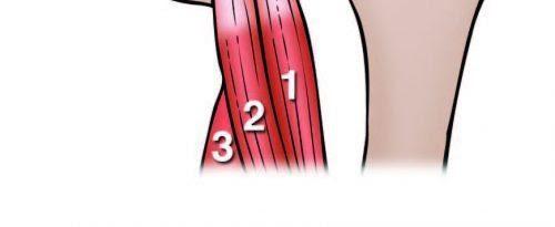 Hamstring Heads Anatomy Diagram - El Paso Chiropractor