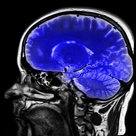 Nuclear neurology: A significant advancement to diagnose brain disorders - Open Med Science