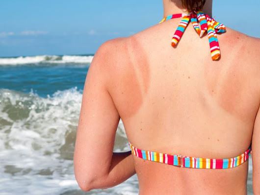 Here's What's Actually Happening To Your Body When You Get A Sunburn