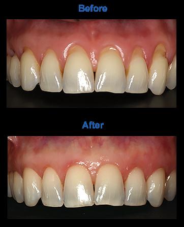 Pinhole Gum Treatment Dentist Fairway KS