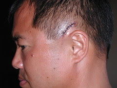 7 stitches from a wacky ride in 35Mph gusting 40 winds 1/2 mile offshore at KiteBeach Maui