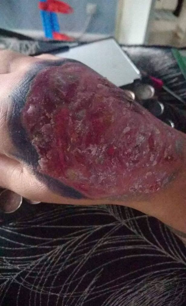 Womans Skin Starts Peeling After Getting New Tattoo Graphic Photos