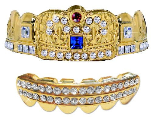 Royal 14K Removable Gold Plated Grillz Review