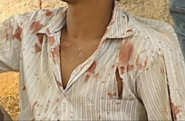 Roupa estava suja de sangue e corpo machucado (Foto: Reprodução / TV TEM)