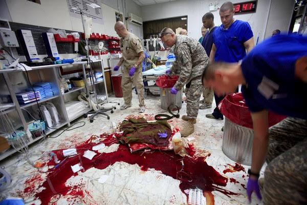 http://www.nocaptionneeded.com/wp-content/uploads/2008/07/mayaalleruzzo-blood.jpg