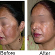 8 Natural Homeopathic Medicines for Treating Facial Pigmentation - Homeopathy at DrHomeo.com