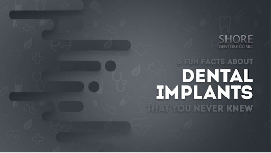 6 Fun Facts About Dental Implants That You Never Knew